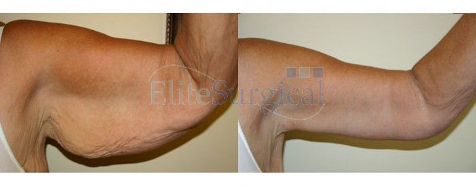 Before and after-arm lift surgery UK