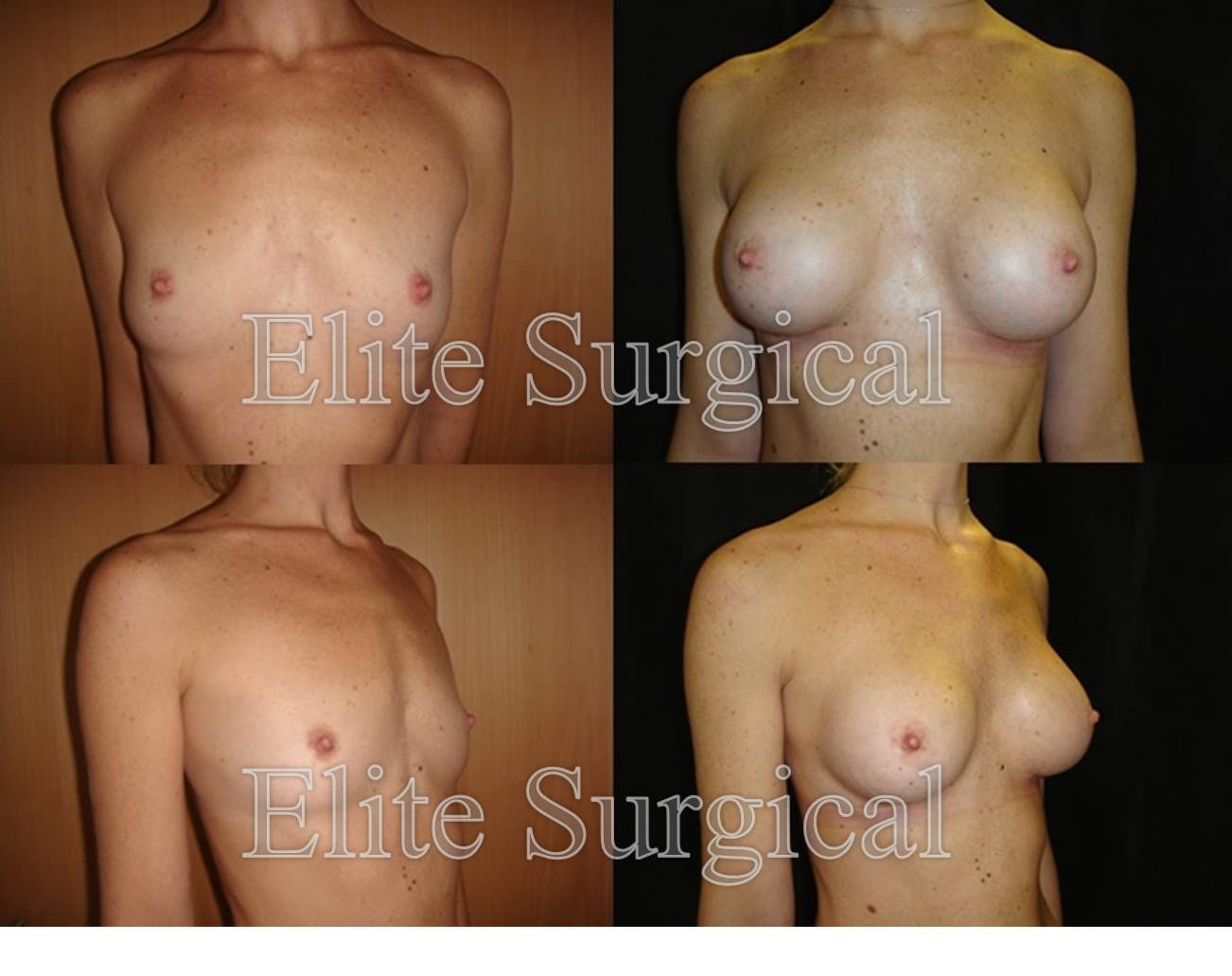 Case study breast implants birmingham, UK