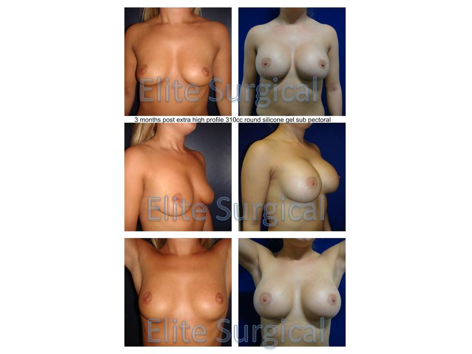 Before and after clickes of breast implants UK