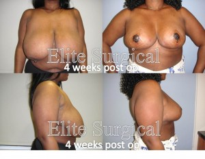 breast augmentation birmingham uk
