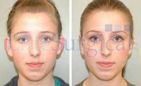 after before ear correction surgery