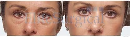 eye bag removal After/Before