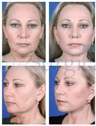 after effects -facelift transformation