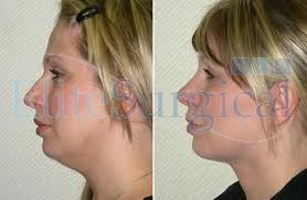Get the best neck lift surgery in uk