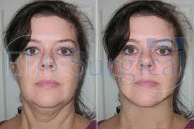 Get the best neck lift surgery (2) in uk