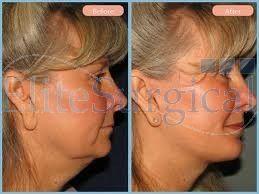 One Stich Facelift | Thread Lift Face Enhancement Treatment