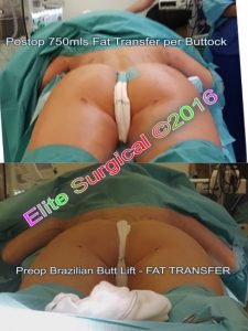 fat transfer to buttocks uk