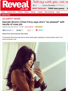 Celebrity and Geordie Shore Star Chloe Ferry talks to Reveal Magazine about her delight with the results of her Rhinoplasty with Elite Surgical