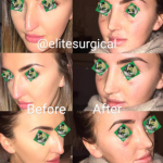 Rhinoplasty - Elite Surgical - pre and postop results
